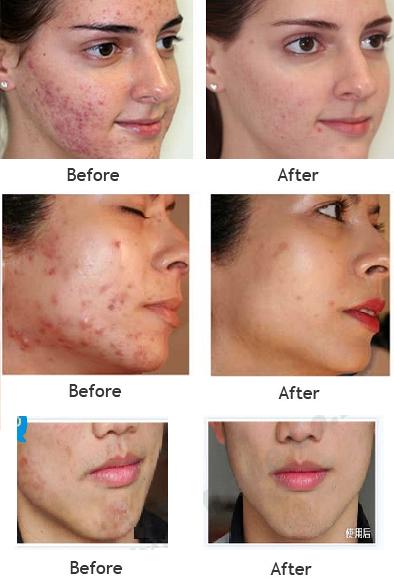 Bioaqua 30g Anti Acne Cream Oil Control Shrink Pores Acne Scar Remove Face Care Skin Care Products