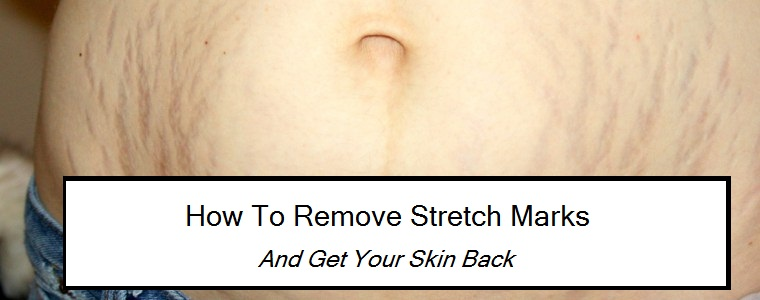 How to remove stretch marks – And Get Your Skin Back