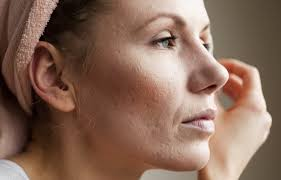 adult acne - 2